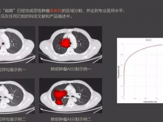 成电系人工智能创业团队实现像素级肿瘤识别  几秒钟勾勒病灶